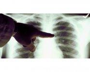 欧美新研究表明:VAPE蒸汽对肺部细胞无